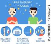 platelet rich plasma injection... | Shutterstock . vector #494061241