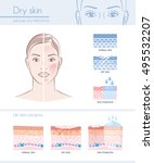 dry skin hydration infographic... | Shutterstock .eps vector #495532207