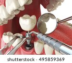 tooth human implant. dental... | Shutterstock . vector #495859369