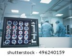surgery on the brain under x... | Shutterstock . vector #496240159