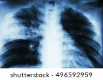Small photo of Lobar pneumonia . film chest x-ray show alveolar infiltration at right middle lobe due to tuberculosis infection .