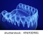 Mouth Gum And Teeth Xray View....