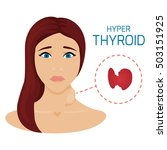woman with hyperthyroid gland.... | Shutterstock .eps vector #503151925