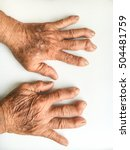 old woman's hands deformed from ... | Shutterstock . vector #504481759