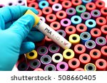 blood sample with psa  prostate ... | Shutterstock . vector #508660405