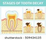 vector illustration of tooth...   Shutterstock .eps vector #509434135
