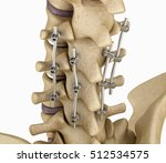Spinal Fixation System  ...