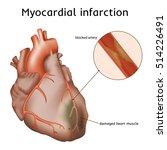 myocardial infarction. heart... | Shutterstock .eps vector #514226491