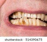 close up macro of teeth of... | Shutterstock . vector #514390675