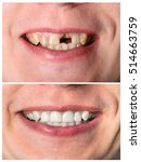Small photo of Incisive man's tooth restoration before and after treatment