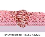 growing tumor  tissue section   ... | Shutterstock .eps vector #516773227
