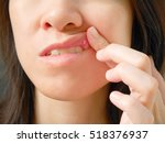 Small photo of Canker sore or ulcer mouth on woman upper lip