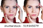 woman before and after cosmetic ... | Shutterstock . vector #519345079