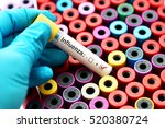 Blood sample positive with...
