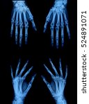 X Ray Of Hand