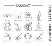cataract. symptoms  treatment.... | Shutterstock .eps vector #525378334