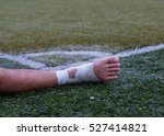 Ankle Injury Of Football Playe...