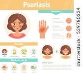 psoriasis. skin problems.... | Shutterstock .eps vector #529780324