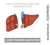 living donor right lobe liver... | Shutterstock .eps vector #533098381