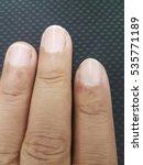 Small photo of paronychia eczema