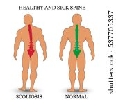 healthy and diseased spine ... | Shutterstock . vector #537705337