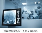 x ray scan of the patients... | Shutterstock . vector #541713301