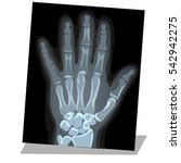hand x ray view. a healthy palm....   Shutterstock .eps vector #542942275