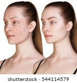 girl with acne before and after ... | Shutterstock . vector #544114579