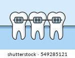 teeth with dental braces vector ... | Shutterstock .eps vector #549285121