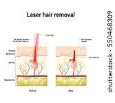 laser hair removal. laser... | Shutterstock .eps vector #550468309