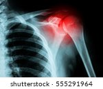 x ray film of shoulder fracture | Shutterstock . vector #555291964