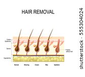 hair removal with wax  cream ...   Shutterstock .eps vector #555304024