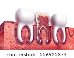 human tooth. cross section. 3d... | Shutterstock . vector #556925374