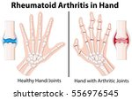 diagram showing rheumatoid... | Shutterstock .eps vector #556976545