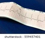 electrocardiogram   Shutterstock . vector #559457401