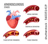 atherosclerosis stages. normal... | Shutterstock .eps vector #560351419