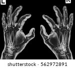 X Ray Both Hand