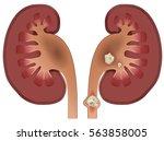nephrolithiasis kidney stones... | Shutterstock .eps vector #563858005