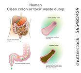 human clogged colon  healthy... | Shutterstock .eps vector #565482439