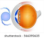 intraocular lenses  iols   are... | Shutterstock .eps vector #566390635