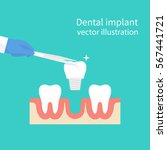 dental implant. dentist holding ... | Shutterstock .eps vector #567441721