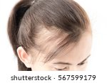 woman serious hair loss problem ... | Shutterstock . vector #567599179