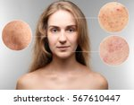 acne and skin care concept.... | Shutterstock . vector #567610447