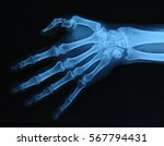 x ray of a male hand with... | Shutterstock . vector #567794431