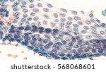 thyroid cancer awareness ... | Shutterstock . vector #568068601