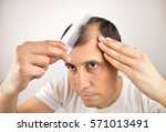 man controls hair loss with a... | Shutterstock . vector #571013491