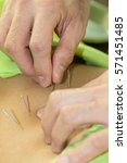 Small photo of Hand acupuncture on back for back pain treatment