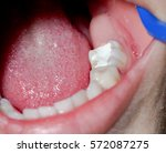 Small photo of Macro of a tooth with amalgam filling
