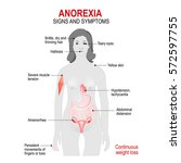anorexia nervosa is an eating... | Shutterstock .eps vector #572597755