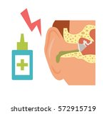 otitis. vector art on a white... | Shutterstock .eps vector #572915719